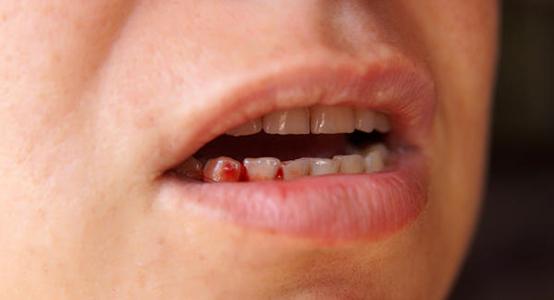 dental care pregnant women