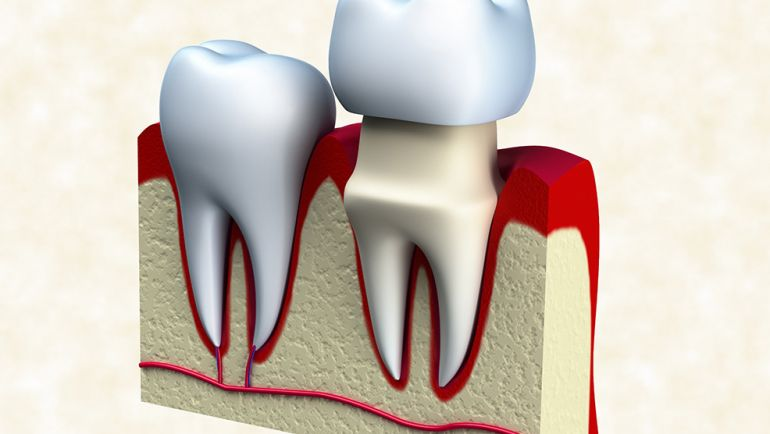 Root Canal Treatment Thru Dental Crowns