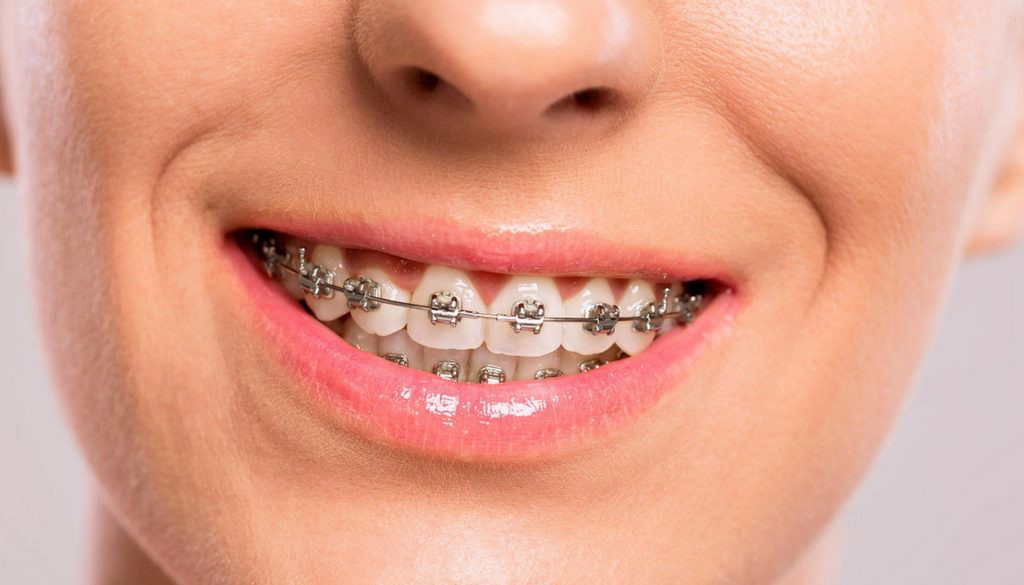 Should You Consider Wearing Braces?