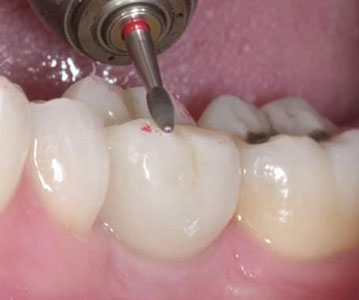 Occlusal Equilibration