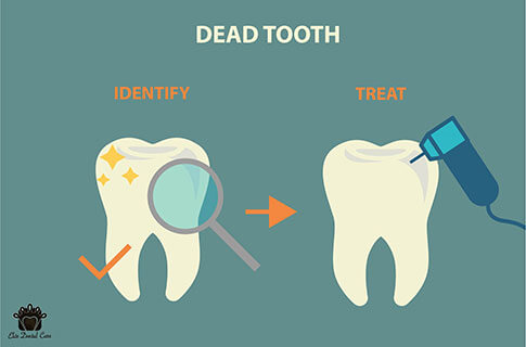 Identifying and treating a dead tooth