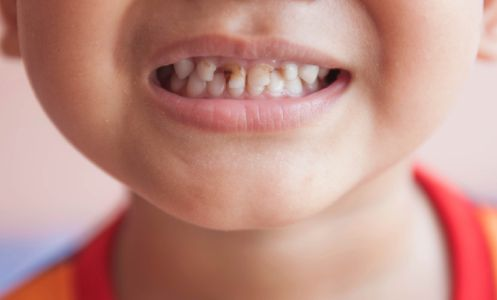 dental myths and facts