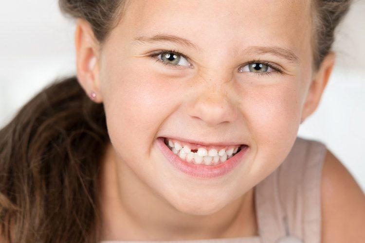 congenitally missing teeth girl