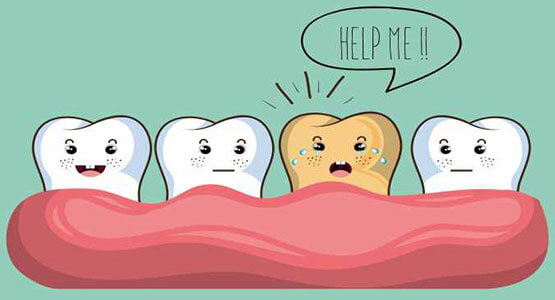 teeth stain