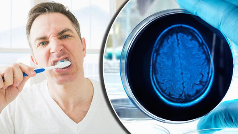 Is Alzheimers disease linked to Gum disease?