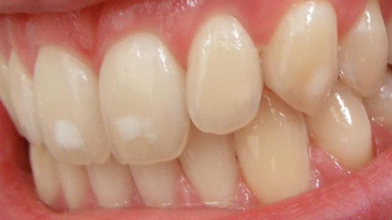 Removing White Spots on Teeth