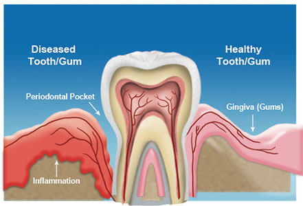 alzheimers linked to gum disease