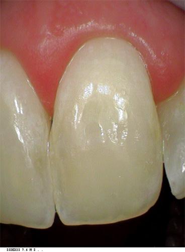 whitespot treatment after