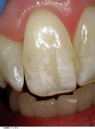 whitespot treatment before