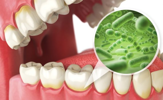 Dental Health and the Disruption of Oral Bacteria