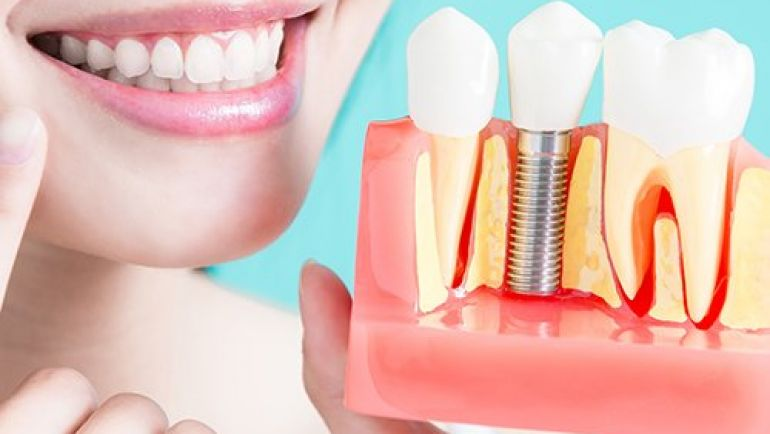 Implants are an Excellent Tooth Replacement Option