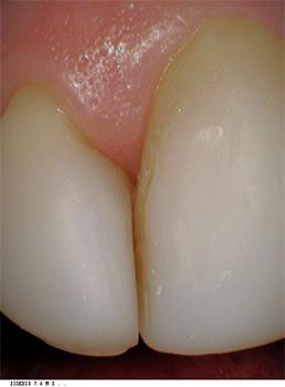 dental filling