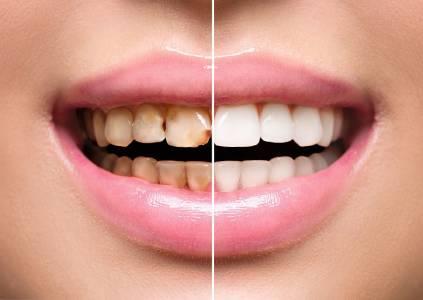 biomimetic dentistry