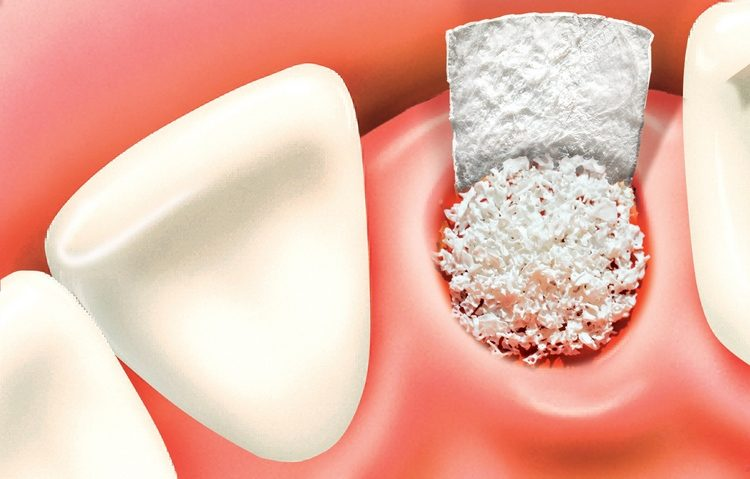 Ridge Preservation Bone Grafting