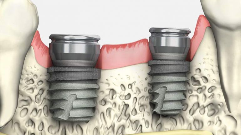 Use of Short Dental Implants