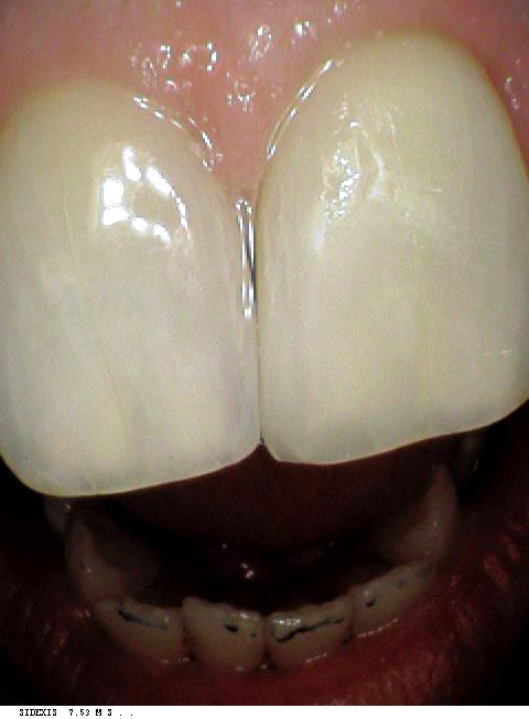 dental bonding case after