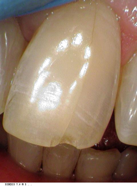dental bonding case before