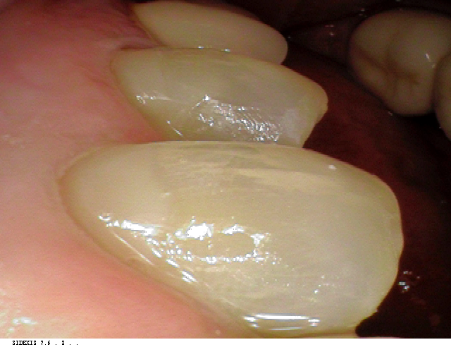 dental erosion case after