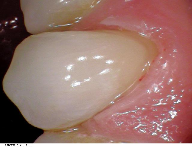 dentalerosion caseafter