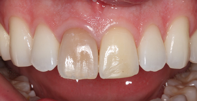 cosmetic dentistry mississauga