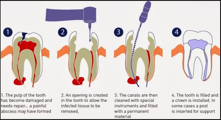 rootcanalprocedure