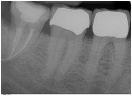 root canal procedures