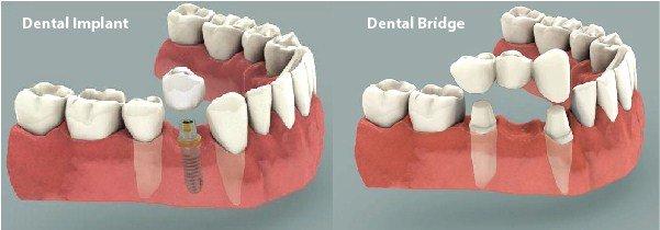 dental_implants_vs_bridge