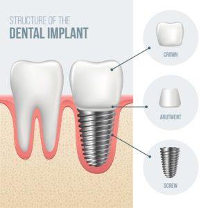 dental crown implant