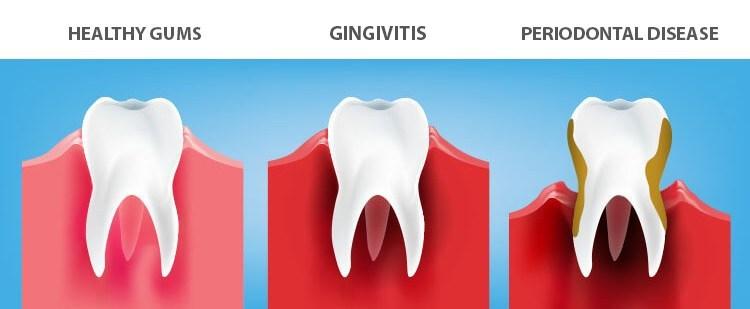 gingivitis periodontal disease