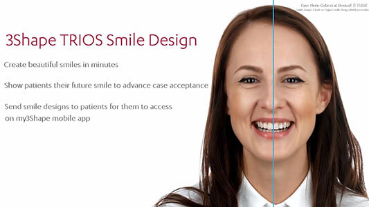 3Shape TRIOS Smile Design