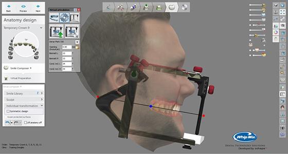 Bellus 3D 3Shape