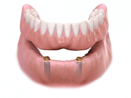 Removable Implant-Supported Overdenture