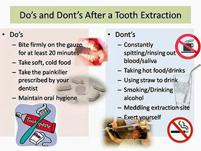 dos donts tooth extraction