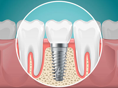space needed for dental implant