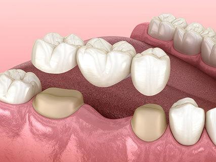 dental crown vs bridge