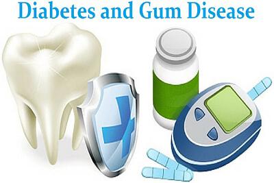 Diabetes-and-Gum-Disease-resized