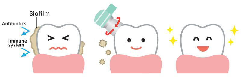 dental-biofilm-removal-cute-cartoon-illustration-health-oral-care-concept-professional-tooth-cleaning-remove-hygiene