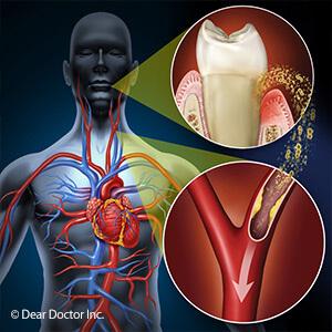 oral-systemic-health-disgram