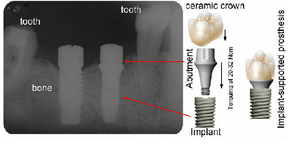 Schematics-of-a-titanium-based-abutment-implant-joint