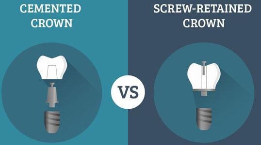 Screw-vs-Cement