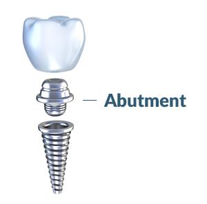 abutment-1