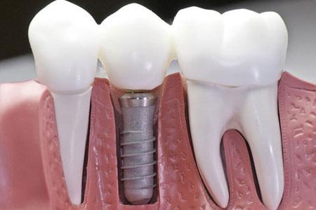dental-implant-crown