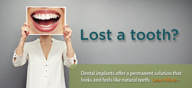 dental-implants-permanent-solution