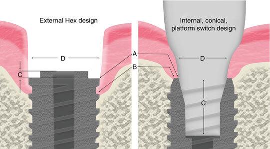 pre-implant-tissue-abutment