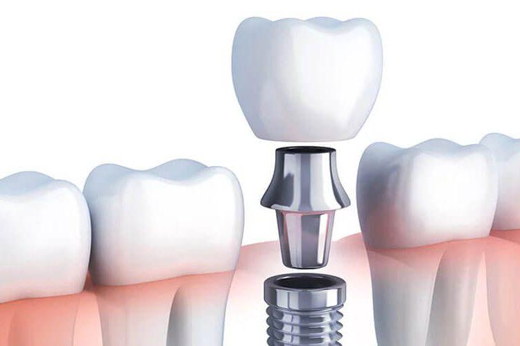 tooth-bone-loss