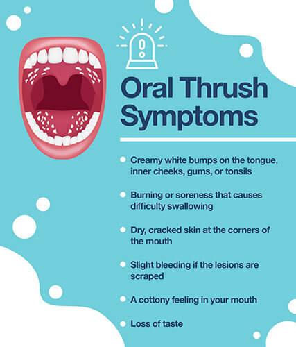 Infographic1_Oral-Thrush