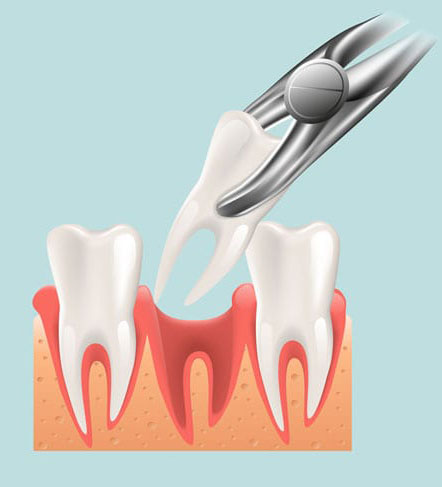 Tooth-Extraction-explained