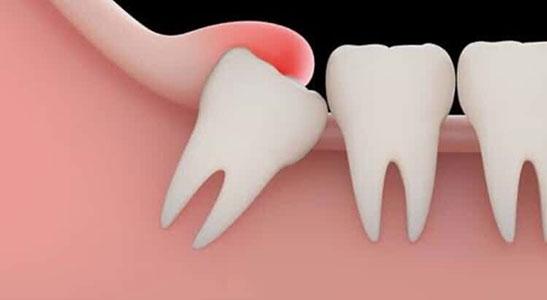 pericoronitis-toronto-emergency-dental-service