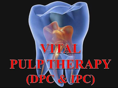 vital-pulp-therapy